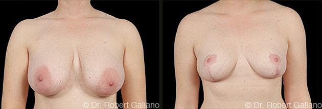 breast-lift-001