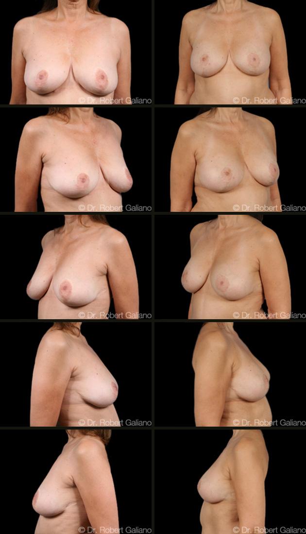 breast-lift-009