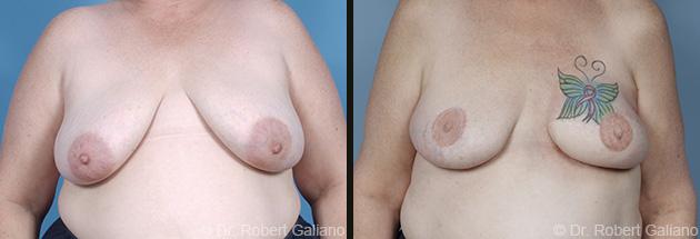 breast-recon-001