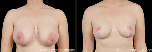 breast-red-001