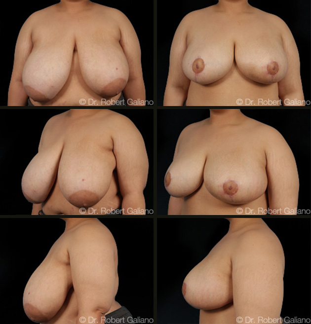 breast-red-005