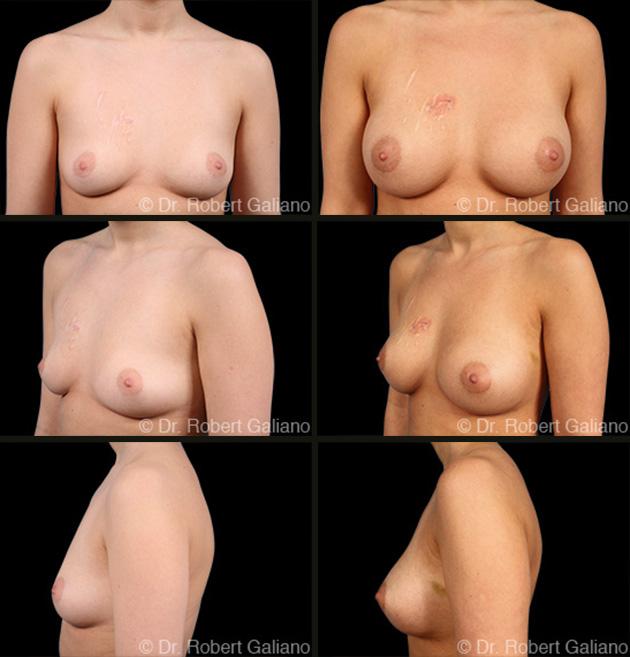breast-scar-rev-001