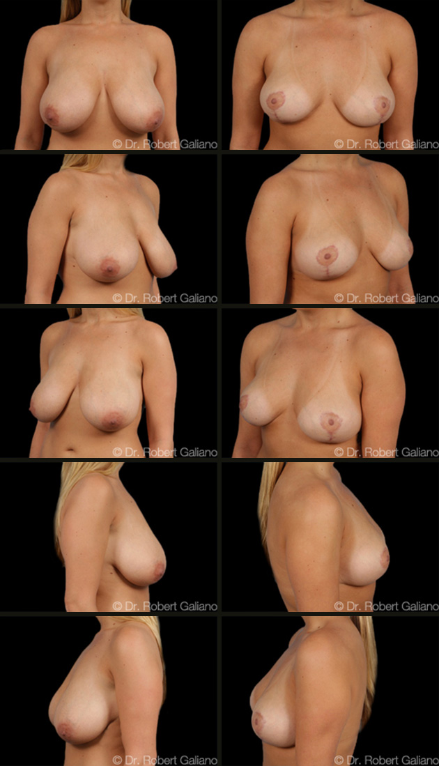 breast-lift-007