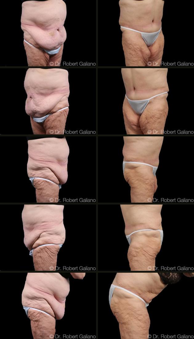 massive-weight-loss-001