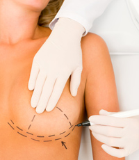 chicago breast lift implant surgery