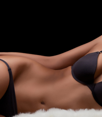 Liposuction Patient in Chicago